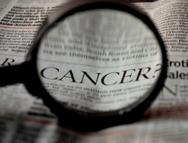 Oral Cancer Screening Can Save Your Life | Dentist in 10543